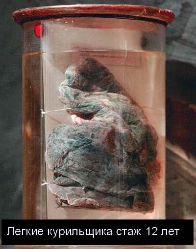 Легкие курящего человека (фото)