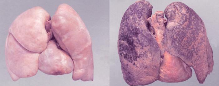 легкие курильщика фото в сравнении со здоровыми легкими