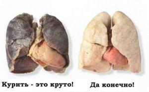 Последствия курения для легких